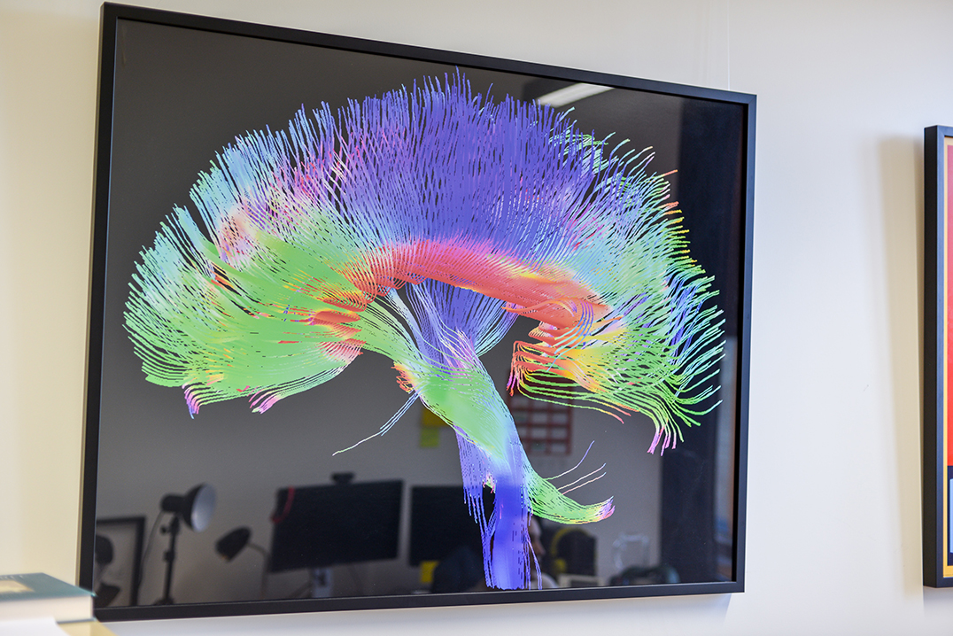 I am always thinking about cognitive ageing, so that is a brain, an MRI of a brain. The different colours measure different parts of blood flow. It looks like a feather.
